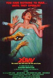 Watch Free XRay (1981)